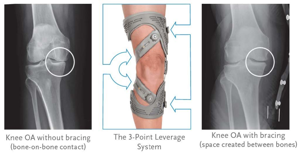 Before and after off loader knee brace x-ray
