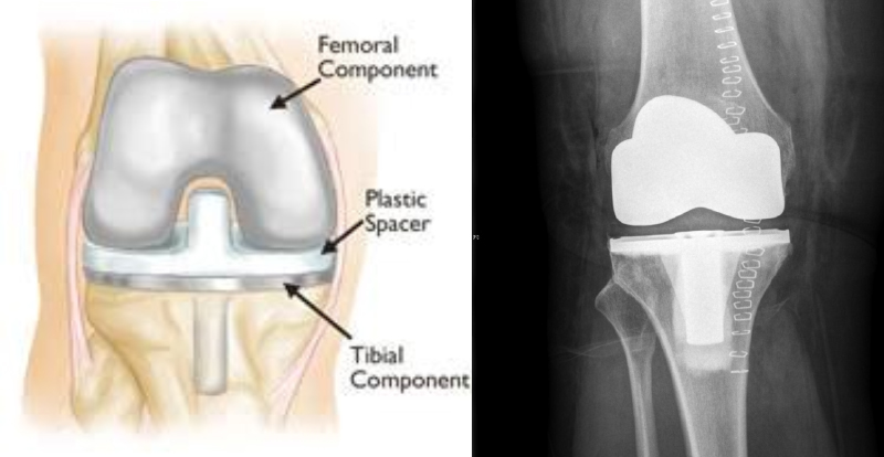 Full knee replacement diagram and xray