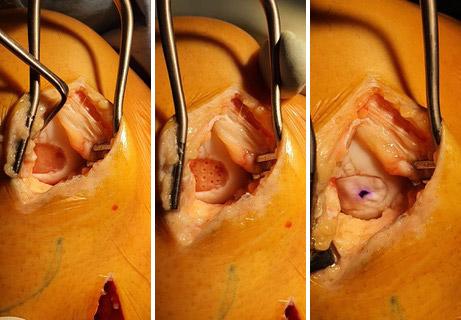 Knee Cartilage Surgery - Cristian Nita