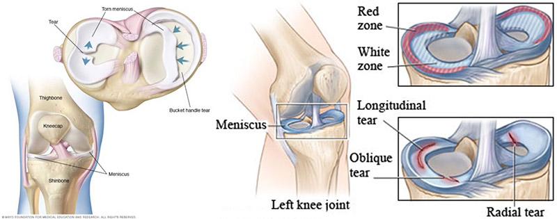 Knee meniscus tear diagrams - Cristian Nita
