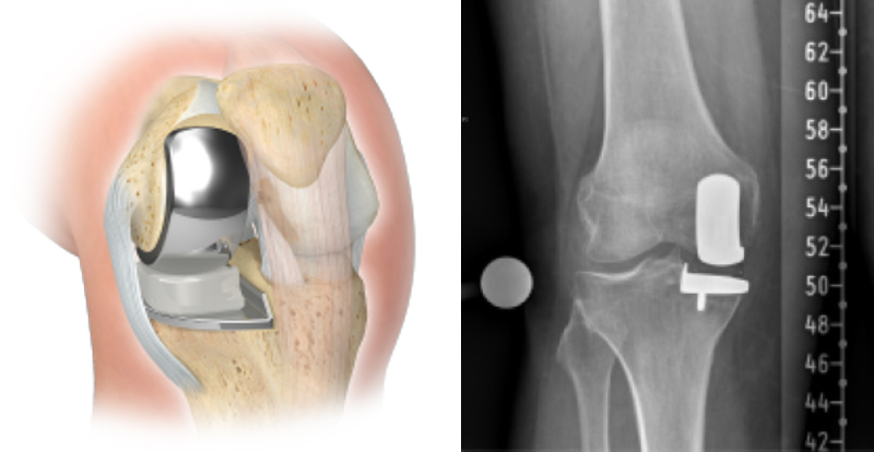 Partial knee replacement diagram and xray